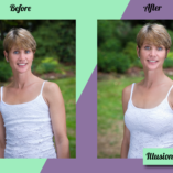 illusion-breast-form-before-after